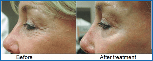 fractional laser eyelift before-after
