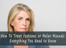 how to treat festoons
