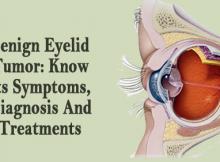 Benign Eyelid Tumor