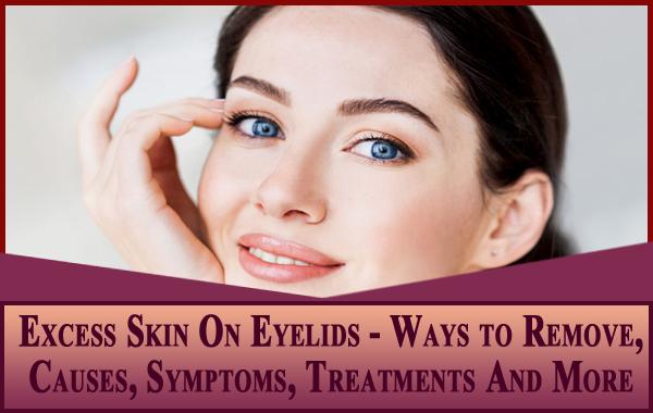 Excess Skin On Eyelids