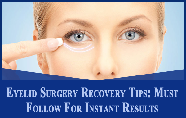 Eyelid Surgery Recovery Tips