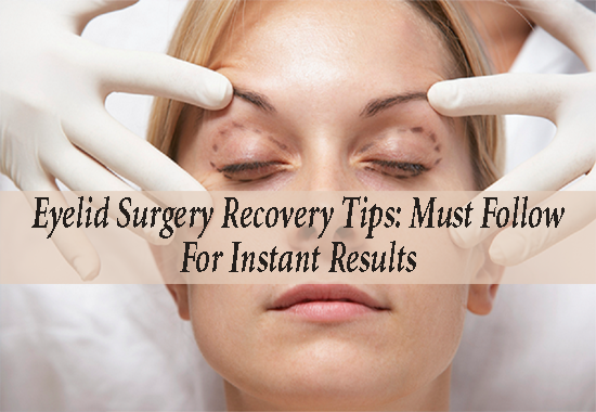 Blepharoplasty recovery timeline » Eyelid Surgery: Cost ... |Lower Blepharoplasty Recovery Photos