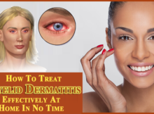 How-To-Treat-Eyelid-Dermatitis copy