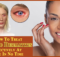 How-To-Treat-Eyelid-Dermatitis copy