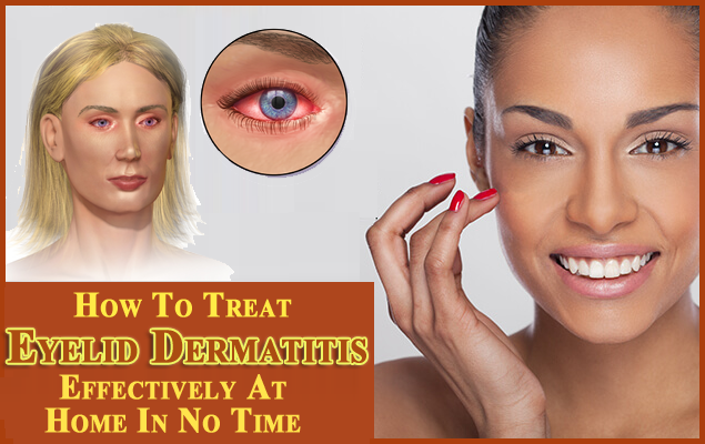 cdcb813b132 How To Treat Eyelid Dermatitis Effectively At Home In No Time