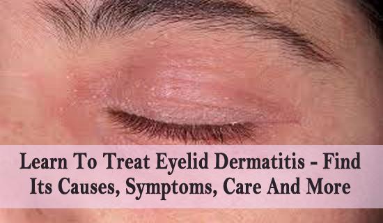 Natural Ways To Treat Dermatitis