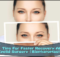 7 Tips For Faster Recovery After Eyelid Surgery (Blepharoplasty)