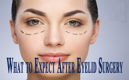 What to Expect After Eyelid Surgery