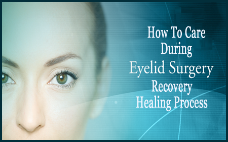 eyelid-surgery recovery time