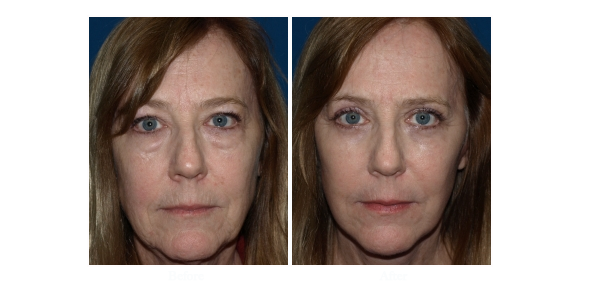 Eyelid Surgery Recovery Tips: Must Follow For Instant Results