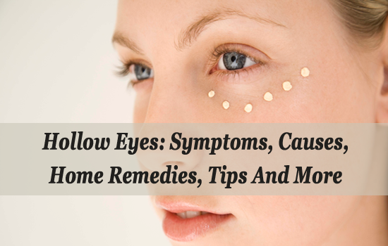 Hollow Eyes: Symptoms, Causes, Home Remedies, Tips And More