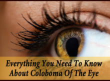 Coloboma-of-the-Eye