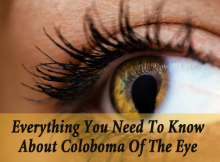 Coloboma of the Eye