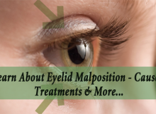 Learn About Eyelid Malposition - Causes, Treatments & More..