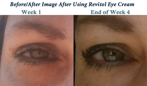Before After Image After Using revitol Eye Cream