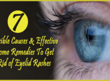 Possible Causes & Effective Home Remedies To Get Rid of Eyelid Rashes