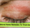 Top 10 Natural Home Remedies To Treat Eyelid Rashes