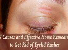 rashes on eyelids