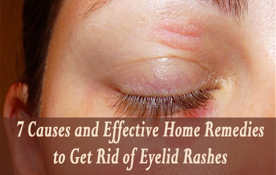 How To Treat Dry Eye Syndrome Naturally