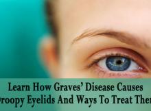Graves Disease Causes Droopy Eyelids