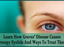 Graves-Disease-Causes-Droopy-Eyelids copy