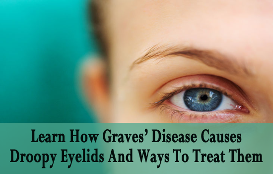 Natural Cure For Graves Eye Disease