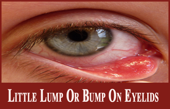 Worried About Little Lump Or Bump On Eyelids? Learn Its ...