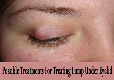 Worried About Little Lump Or Bump On Eyelids? Learn Its