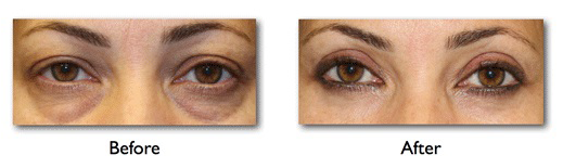 4 Unique Ways To Treat Lower Eyelid Bags That Actually Works