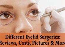 types of eyelid surgery