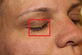 Eyelid Skin Tags