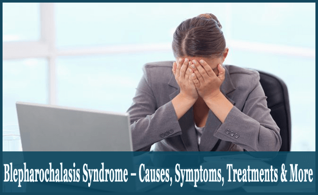 Blepharochalasis-Syndrome-–-Causes-Symptoms-Treatments-More