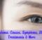 Eyelid Edema