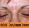 Psoriasis On Eyelid
