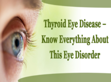 Thyroid Eye Disease – Know Everything About This Eye Disorder