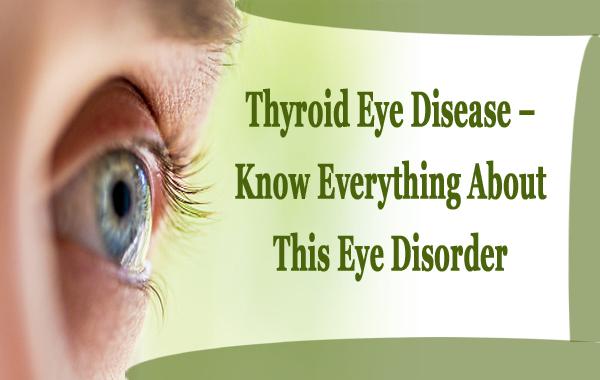 Thyroid Eye Disease – Know Everything About This Eye Disorder