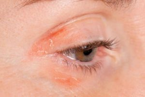 psoriasis-around-the-eye