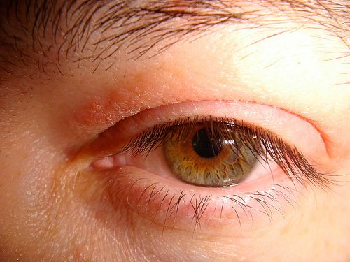 Psoriasis On Eyelid Causes Symptoms Treatments Amp More