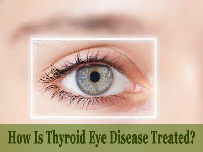 How Is Thyroid Eye Disease Treated?
