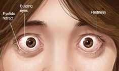 thyroid eye disorder-image