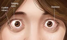 thyroid eye disorder-image