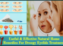 Home Remedies For Droopy Eyelids Treatment