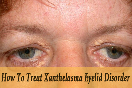 How To Treat Xanthelasma Eyelid Disorder