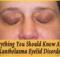 Xanthelasma Eyelid Disorder copy