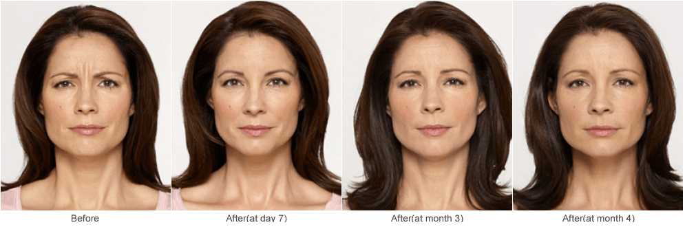 Botox Injections Work