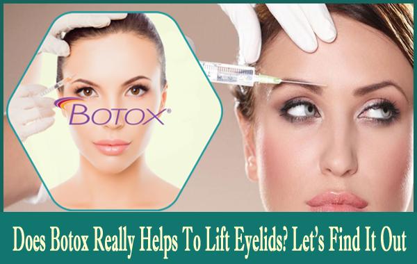 Botox to lift eyelids