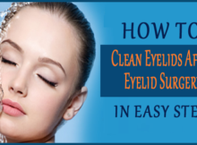 how to clean eyelids after eyelid surgery