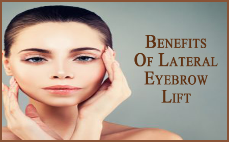 Benefits Of Lateral Eyebrow Lift