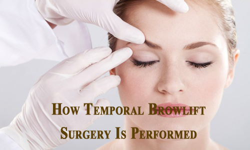 How Temporal Browlift Surgery Is Performed