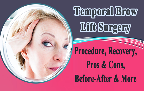 Temporal Brow Lift Surgery – Procedure, Recovery, Pros & Cons, Before-After & More